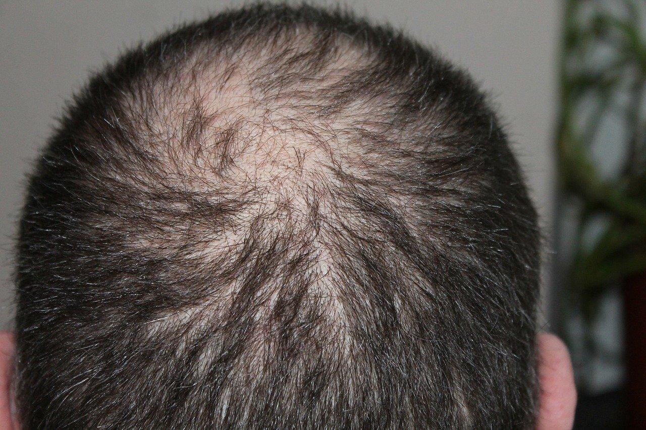Chute de cheveux : que faire ?